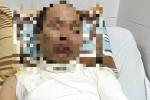 Cha bị tạt axit trước mặt con gái 9 tuổi ở Hà Nội