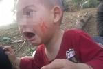 Xót xa bé trai bị cam miệng hoại tử lở loét, chảy máu khắp chân răng