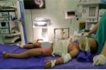 Bị dội nước sôi, bé trai 2 tuổi bỏng nặng, toàn thân bong tróc