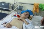 Lao ra đường ray cứu 2 người phụ nữ, chàng trai người Nùng bị tụ máu não thương tâm