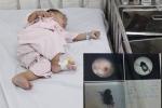 Nuốt nhầm bọ cánh cứng, mẹ xử lý sai khiến bé 8 tháng tuổi suýt mất mạng