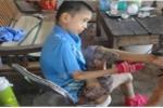 Tận cùng nỗi đau của cậu bé mắc bệnh lạ, u mọc nhiều như nấm ở Bắc Giang
