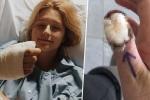 Video: Cô gái phải cắt bỏ ngón tay vì thói quen cắn móng tay
