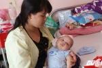 Hàng loạt trẻ nhập viện vì mắc bệnh úng não thủy