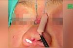 Đi nâng mũi, cô gái bị sụn silicon đâm thủng sống mũi