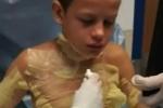 Video: Học theo trào lưu trên Youtube, cậu bé suýt bị thiêu cháy