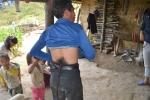 Chuyện lạ: Người mọc đuôi ở Hà Giang