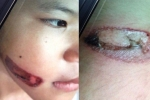 Những vụ bạo hành trẻ em rúng động dư luận
