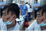 Nam điều dưỡng bệnh viện bị người nhà bệnh nhân đánh rách mặt