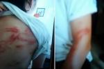 Bố bạo hành 2 con ở Hà Nội: 'Ăn vài cái roi vào mông không có gì là lạ'