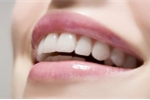 7 thói quen tốt giữ cho răng bạn luôn khỏe mạnh