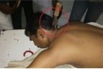 Bị dao đâm sâu 15cm vào gáy, người đàn ông sống sót kỳ diệu