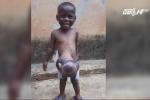 Bé 3 tuổi có nội tạng nằm ngoài cơ thể
