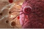 Tế bào ung thư di căn lây lan thế nào?