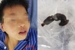 Bác sĩ gắp con đỉa dài 6cm trong cổ họng bệnh nhi 13 tuổi