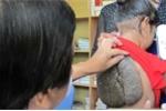 Bé gái mang khối u hình mai rùa ở lưng chưa từng thấy ở Việt Nam
