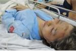 Cần Thơ: Thiếu nữ 17 tuổi bị tạt axit trên đường đi làm về