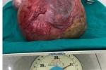 Bệnh viện Đa khoa Đồng Văn - Hà Giang phẫu thuật thành công u nang nặng 5kg