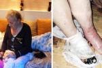 Bệnh nhân hoại tử chân phải, bác sĩ cắt cụt luôn cả chân trái