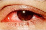 Tháng 9: Dân công sở cẩn trọng lây đau mắt đỏ