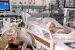 Bé gái 14 tháng tuổi ở TP.HCM bị khỉ nhà hàng xóm cắn chấn thương nặng