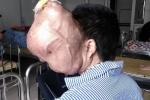 Kinh hãi khối u khổng lồ ăn dần não của người đàn ông