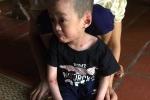 Mắc bệnh hiếm gặp không thể chữa khỏi, bé 5 tuổi ở Phú Thọ cầu cứu trong tuyệt vọng