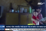 Đau lòng nhiều trẻ mắc sùi mào gà ở Hưng Yên bị kỳ thị, xa lánh