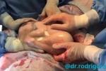 Rung động với khoảnh khắc em bé cuộn mình ngủ say trong túi ối