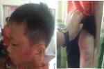 Nữ giáo viên ở Nghệ An nghi bạo hành con riêng của chồng