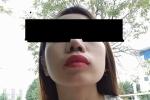 Bỏ 30 triệu đồng phẫu thuật thẩm mỹ, cô gái đau đớn bị lệch mũi