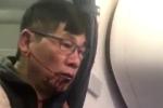 United Airlines bồi thường lớn cho bác sỹ gốc Việt