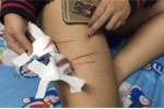 Clip: Nữ sinh kể lại phút ám ảnh bị rạch đùi, phải uống thuốc phơi nhiễm HIV