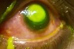 Đeo kính áp tròng ngủ qua đêm, người phụ nữ bị vi khuẩn ăn mòn giác mạc