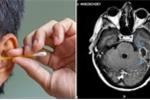 Ngoáy tai bằng tăm bông, người đàn ông bị nhiễm trùng não nguy hiểm chết người