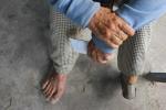 Cuộc chạy trốn số phận nghiệt ngã 30 năm của người đàn bà mắc bệnh lạ