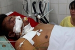Tai nạn thảm khốc ở Gia Lai: Xét nghiệm ma túy lần 2 với tài xế xe tải