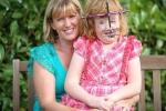 Mắc hội chứng Apert như bé Bôm, bé gái may mắn được tái sinh với khuôn mặt mới