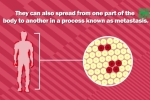 Ghép tạng hiến từ một phụ nữ, bốn người bị lây ung thư
