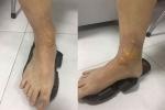 Đi massage chân, người đàn ông ở Hà Nội bị bỏng nặng