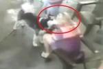 Clip: Vuốt ve chó Husky, cựu người mẫu bị cắn rách mặt, phải phẫu thuật thẩm mỹ