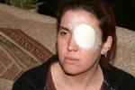 """""""Nổ"""" mắt lần thứ 2- người phụ nữ đối diện nguy cơ bị mù"""