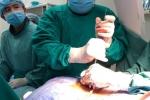 Bắt vít qua da cố định cột sống cho người đàn ông bị thoát vị đĩa đệm