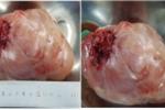 Phẫu thuật thành công bệnh nhân nữ 74 tuổi bị u lớn chèn ép tim phổi