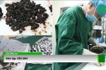 Bác sỹ phẫu thuật gắp gần 300 viên sỏi trong túi mật của người phụ nữ ở Vĩnh Long