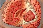 Nếu biết sớm điều này, u não sẽ không hoàn toàn là căn bệnh tử thần