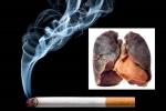 Dấu hiệu nhận biết sớm ung thư phổi không thể bỏ qua