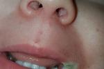 Bé gái 19 tháng bỏng nặng, mất một phần miệng vì ngậm sạc điện thoại