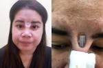 Rùng mình miếng silicon xuyên thủng da sau khi phẫu thuật nâng mũi