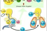 Những lưu ý khi phát hiện vi khuẩn H.pylori bằng nghiệm pháp thở UBT